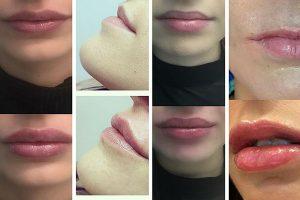 hialuronova-kiselina-v-ustnite